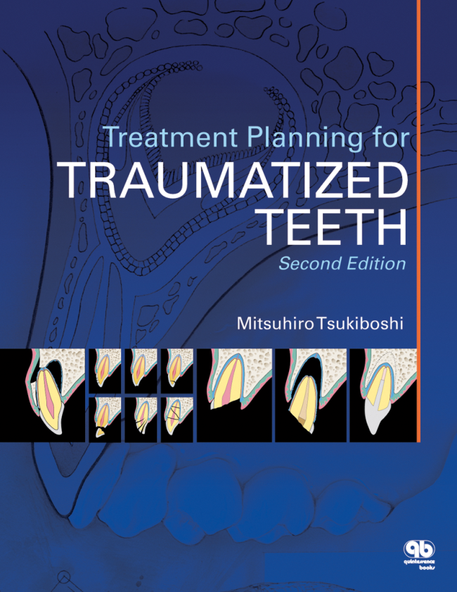 Tsukiboshi: Treatment Planning for Traumatized Teeth