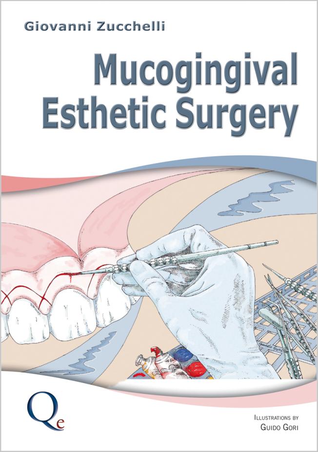 Zucchelli: Mucogingival Esthetic Surgery