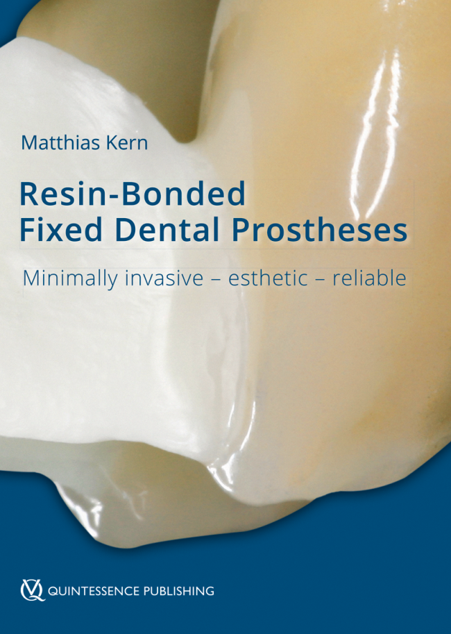 Kern: Resin-Bonded Fixed Dental Prostheses