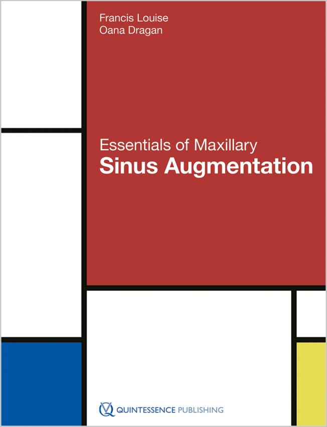 Louise: Essentials of Maxillary Sinus Augmentation