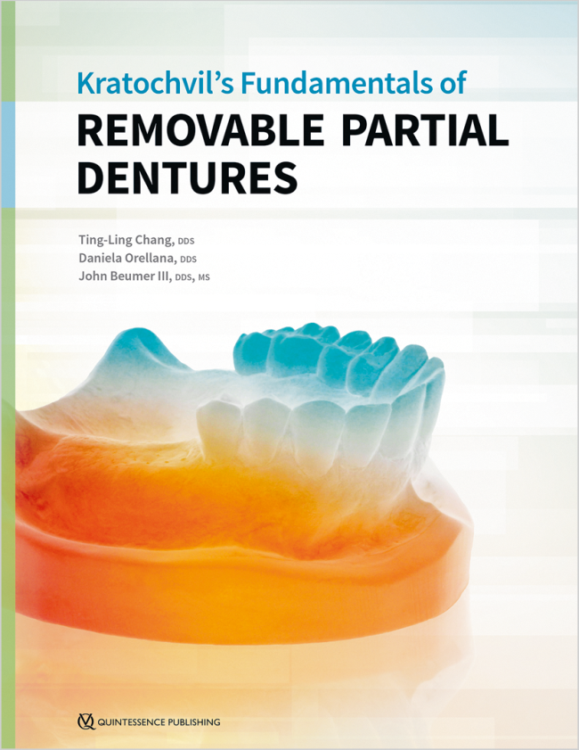 Chang: Kratochvils Fundamentals of Removable Partial Dentures