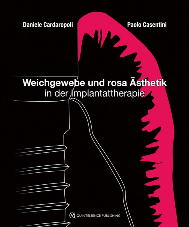 Cardaropoli: Weichgewebe und rosa Ästhetik in der Implantattherapie