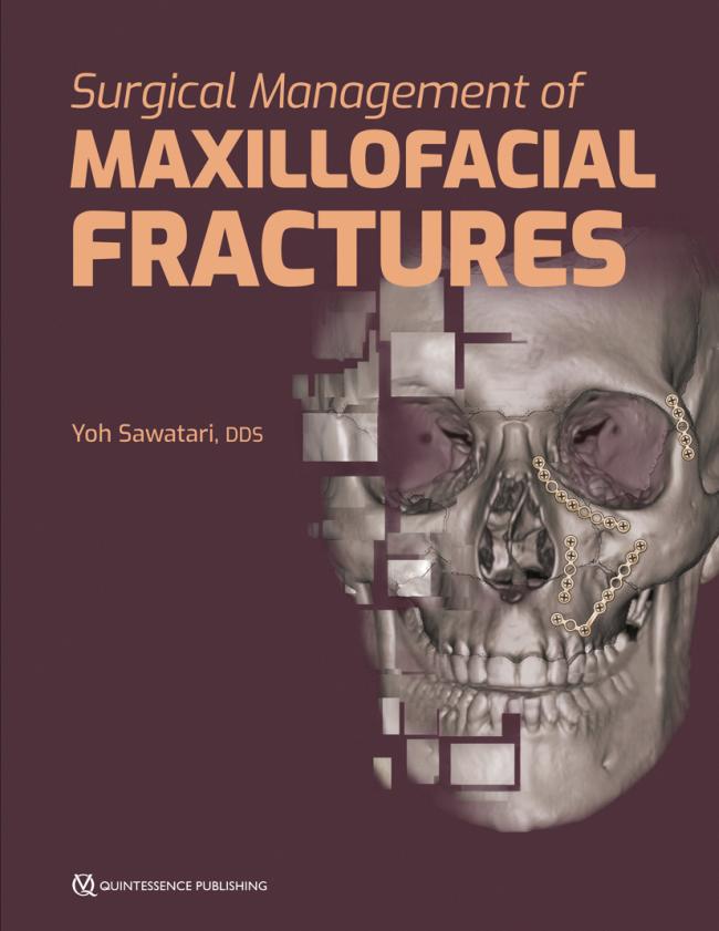 Sawatari: Surgical Management of Maxillofacial Fractures