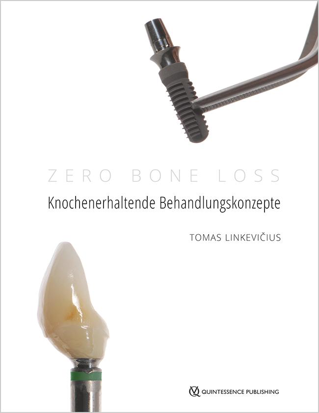 Linkevičius: Zero Bone Loss: Knochenerhaltende Behandlungskonzepte