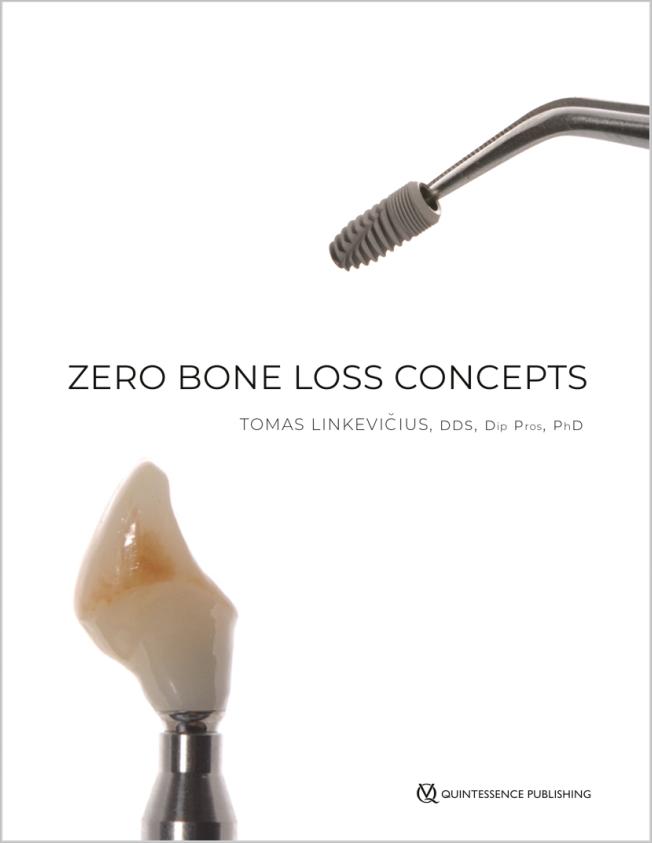 Linkevičius: Zero Bone Loss Concepts