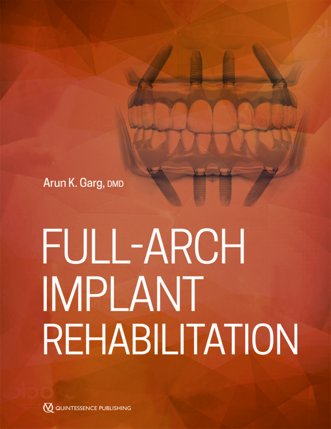 Garg: Full-Arch Implant Rehabilitation