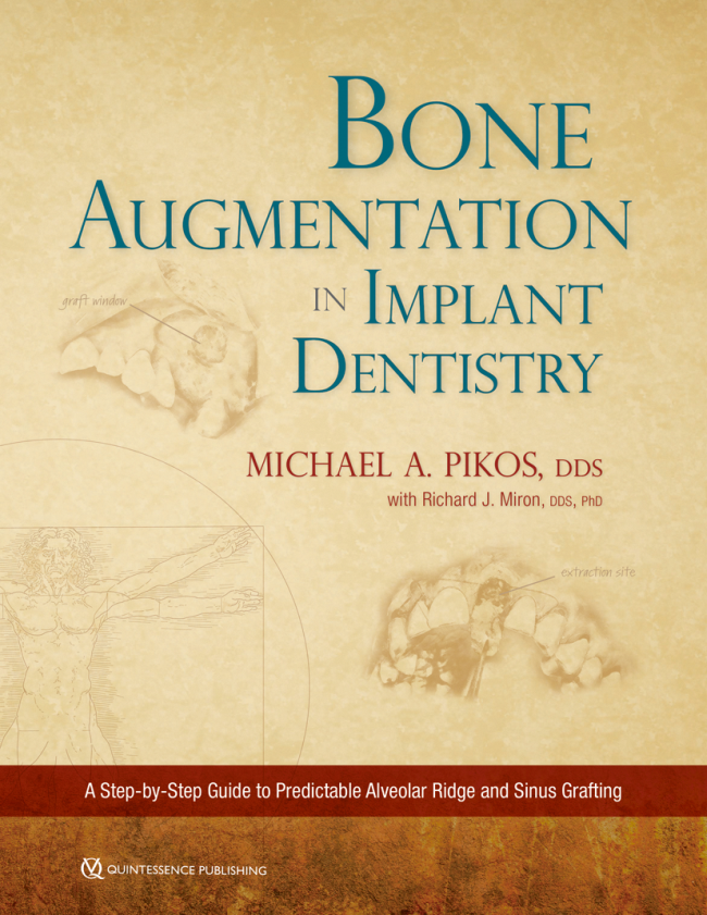 Pikos: Bone Augmentation in Implant Dentistry