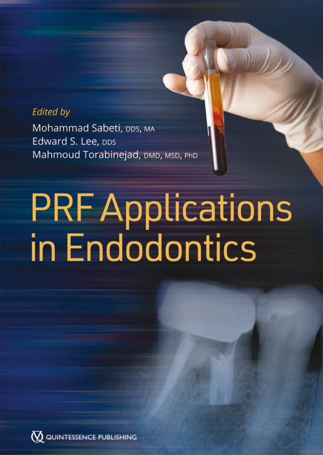 Sabeti: PRF Applications in Endodontics