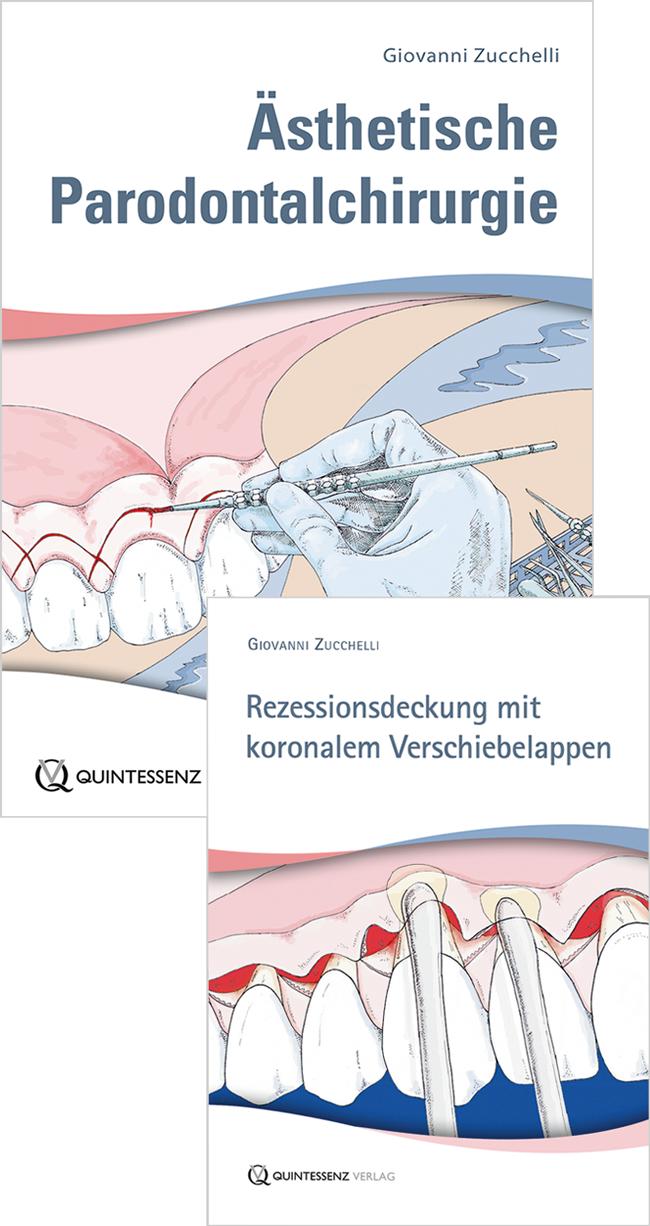 Zucchelli: Ästhetische Parodontalchirurgie