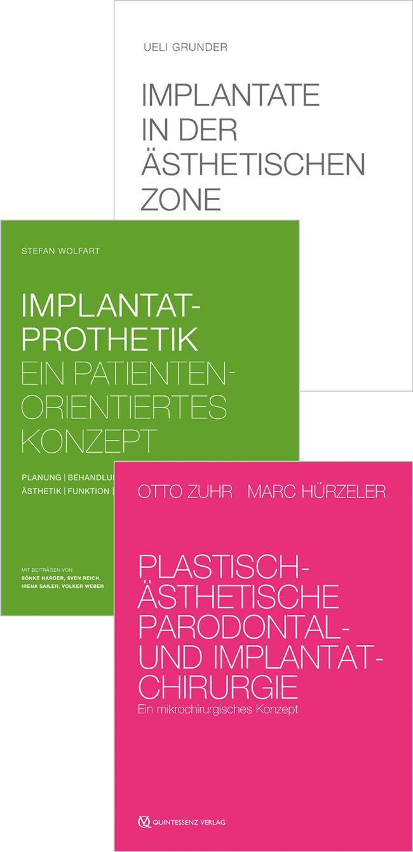 Grunder: Set aus 3 Bestsellern: Implantate in der ästhetischen Zone   Implantatprothetik   Plastisch-ästhetische Parodontal- und Implantatchirurgie