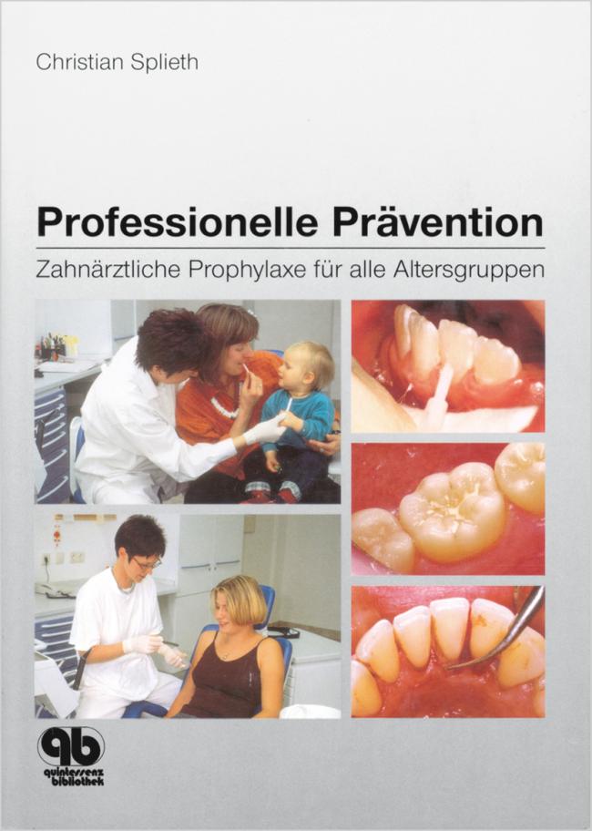 Splieth: Professionelle Prävention