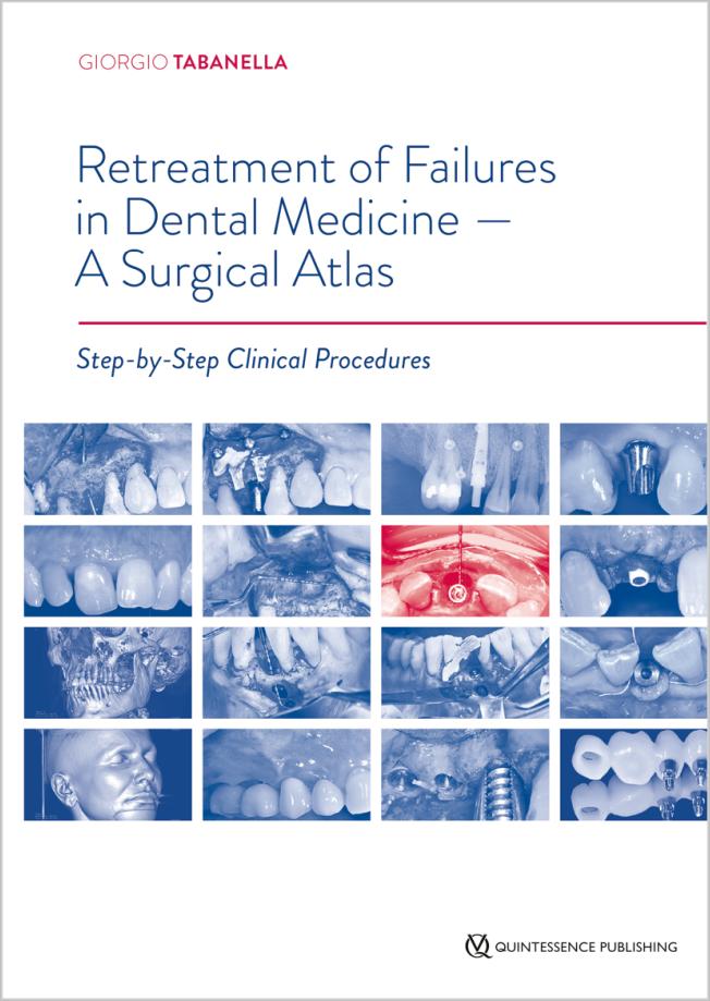 Tabanella: Retreatment of Failures in Dental Medicine - A Surgical Atlas