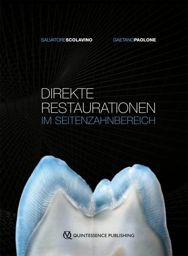 Scolavino: Direkte Restaurationen im Seitenzahnbereich