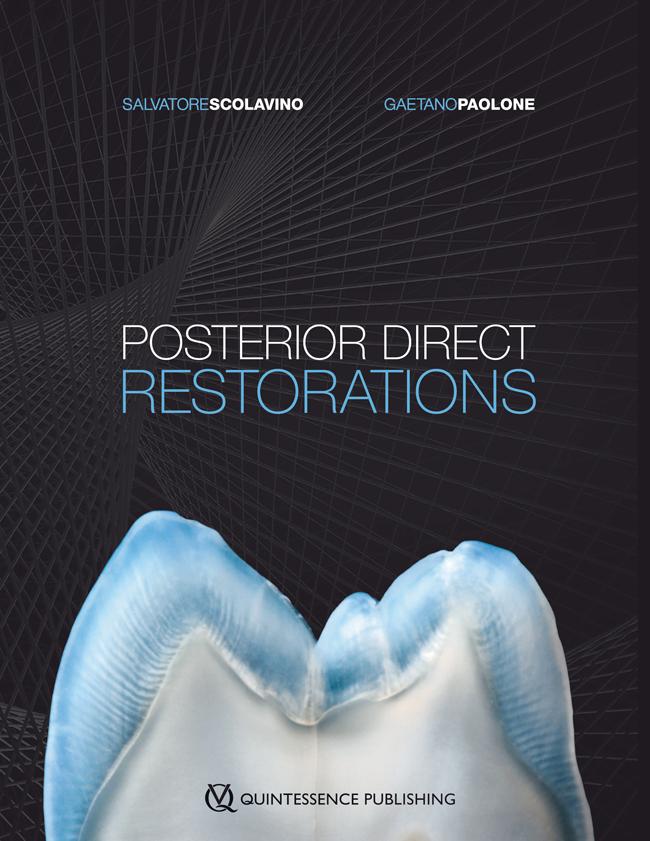 Scolavino: Posterior Direct Restorations