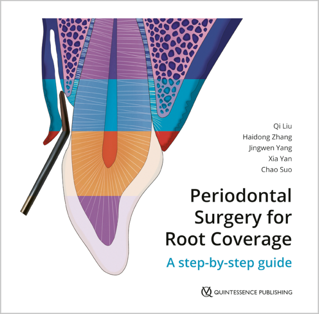 Liu: Periodontal Surgery for Root Coverage