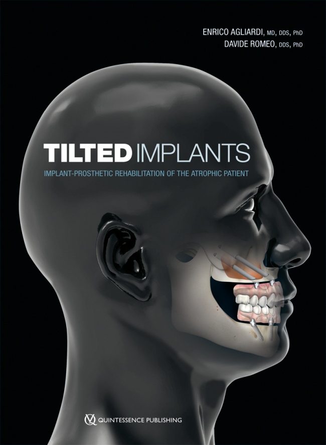 Agliardi: Tilted Implants