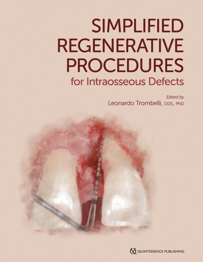 Trombelli: Simplified Regenerative Procedures for Intraosseous Defects