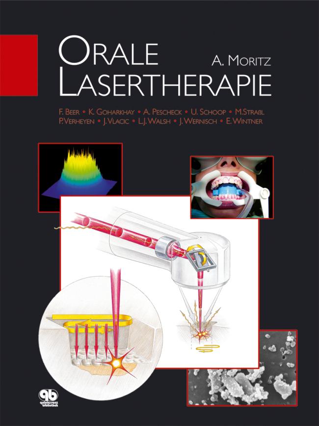 Moritz: Orale Lasertherapie