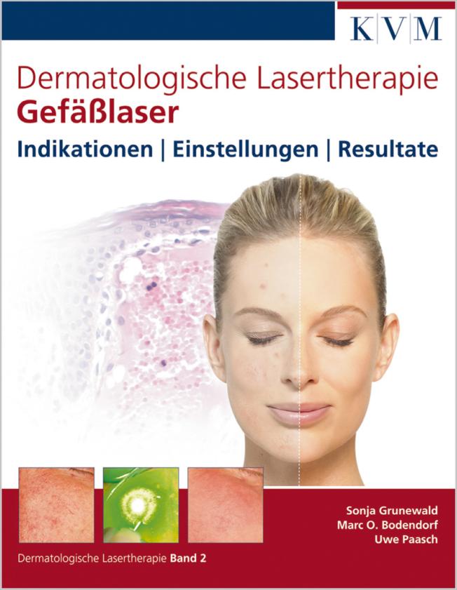 Grunewald: Dermatologische Lasertherapie