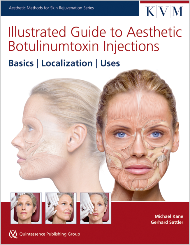 Kane: Illustrated Guide to Aesthetic Botulinumtoxin Injections