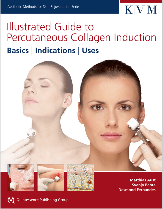 Aust: Illustrated Guide to Percutaneous Collagen Induction