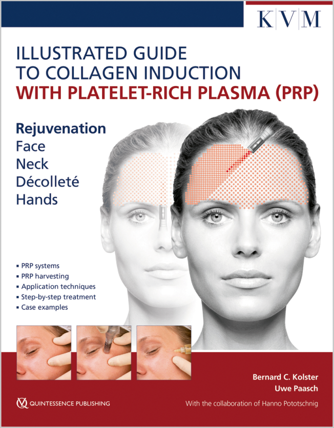 Kolster: Illustrated Guide to Collagen Induction with Platelet-Rich Plasma (PRP)