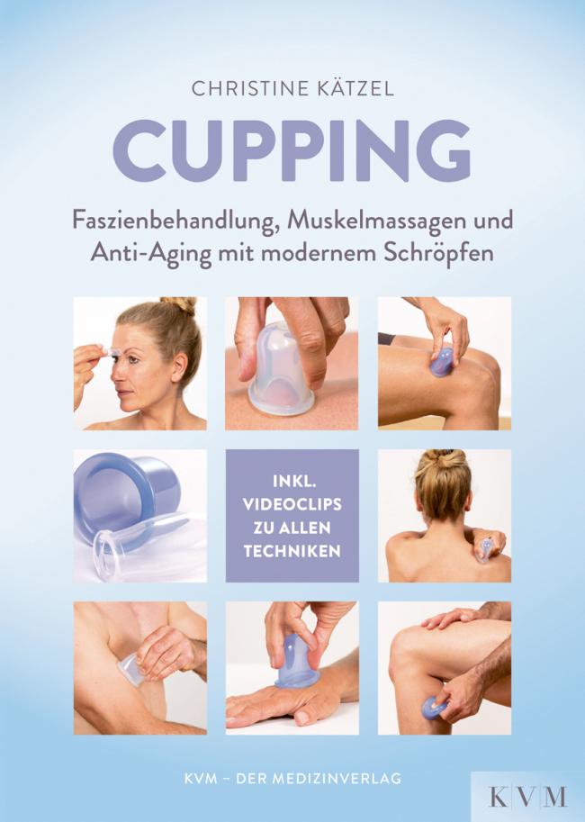 Kätzel: Cupping