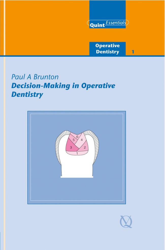 Brunton: Decision-Making in Operative Dentistry