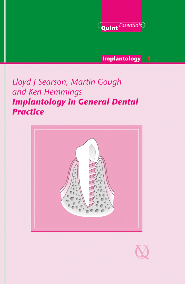Searson: Implantology in General Dental Practice