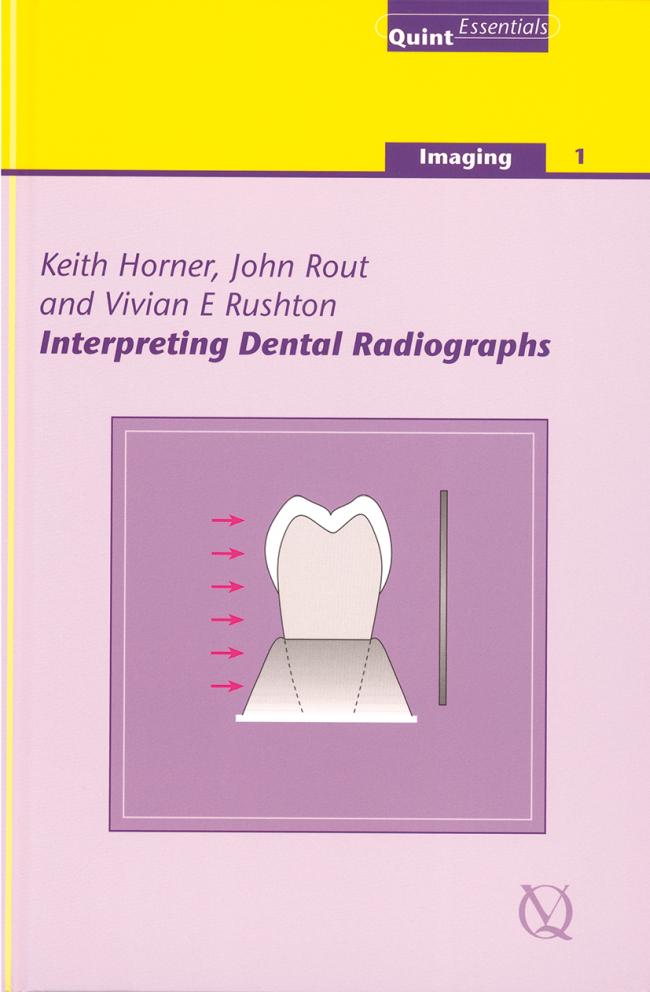 Horner: Interpreting Dental Radiographs