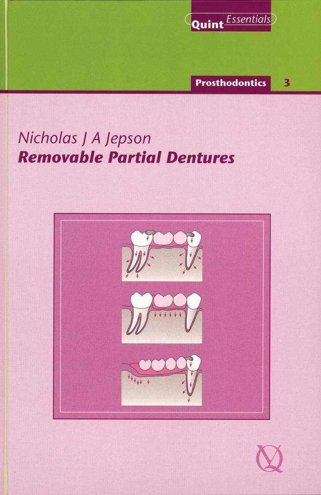 Jepson: Removable Partial Dentures