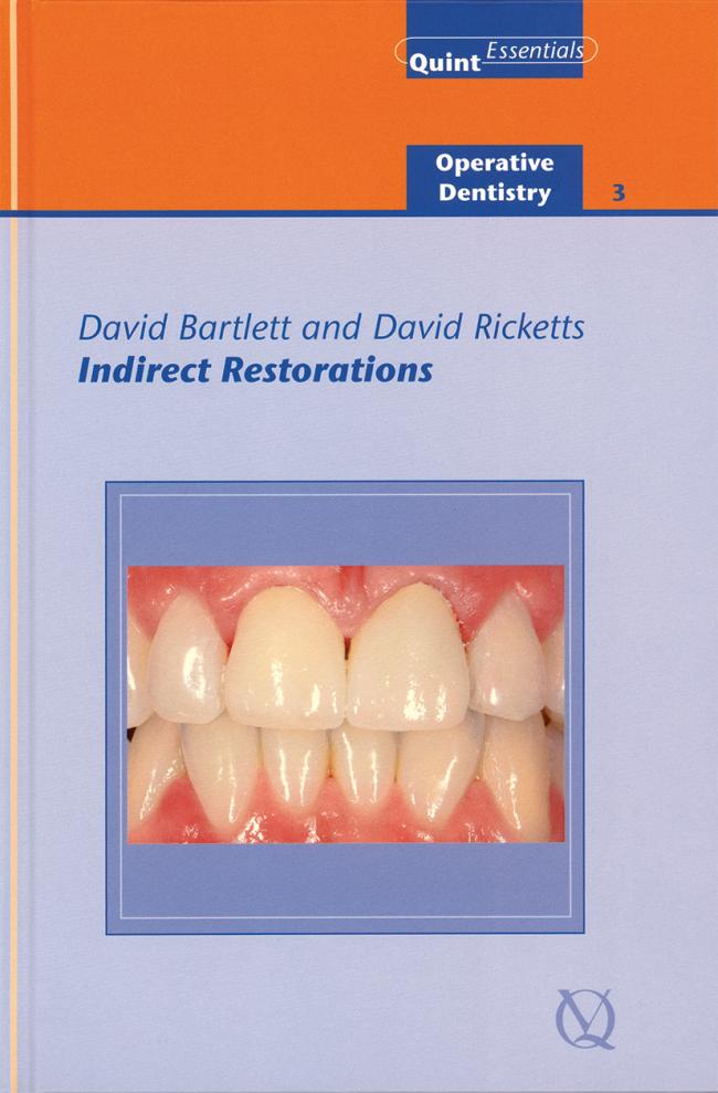Bartlett: Indirect Restorations