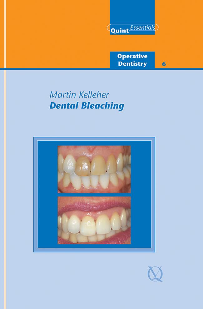Kelleher: Dental Bleaching