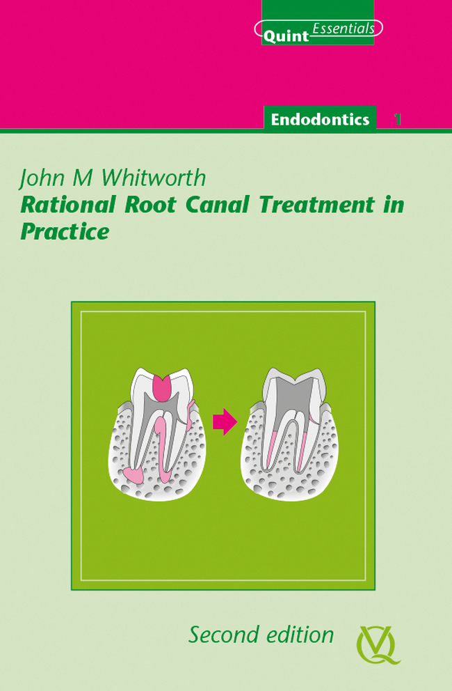 Whitworth: Rational Root Canal Treatment in Practice