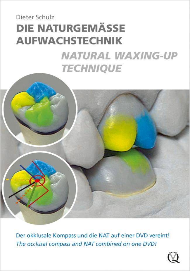 Schulz: Die naturgemäße Aufwachstechnik / Natural Waxing-Up Technique