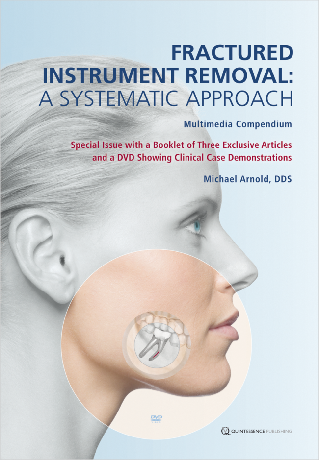 Arnold: Fractured Instrument Removal