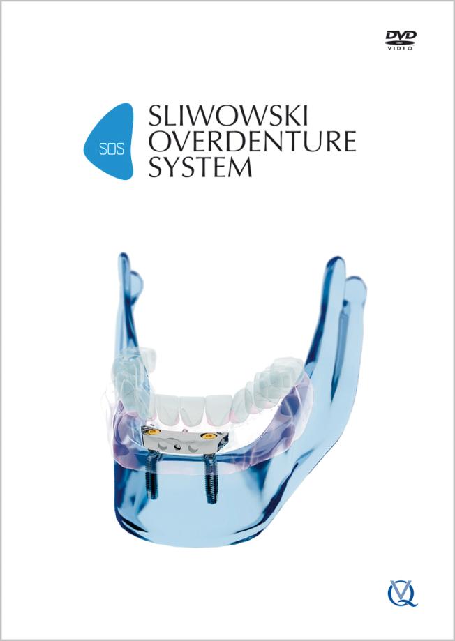 Sliwowski: SOS - Sliwowski Overdenture System