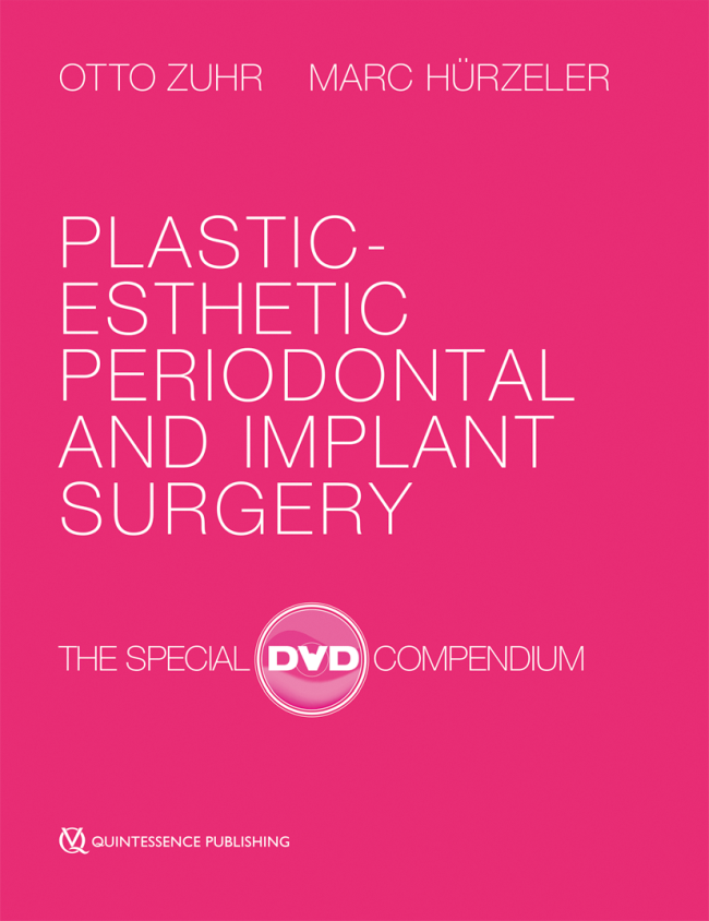 Zuhr: Plastic-Esthetic Periodontal and Implant Surgery