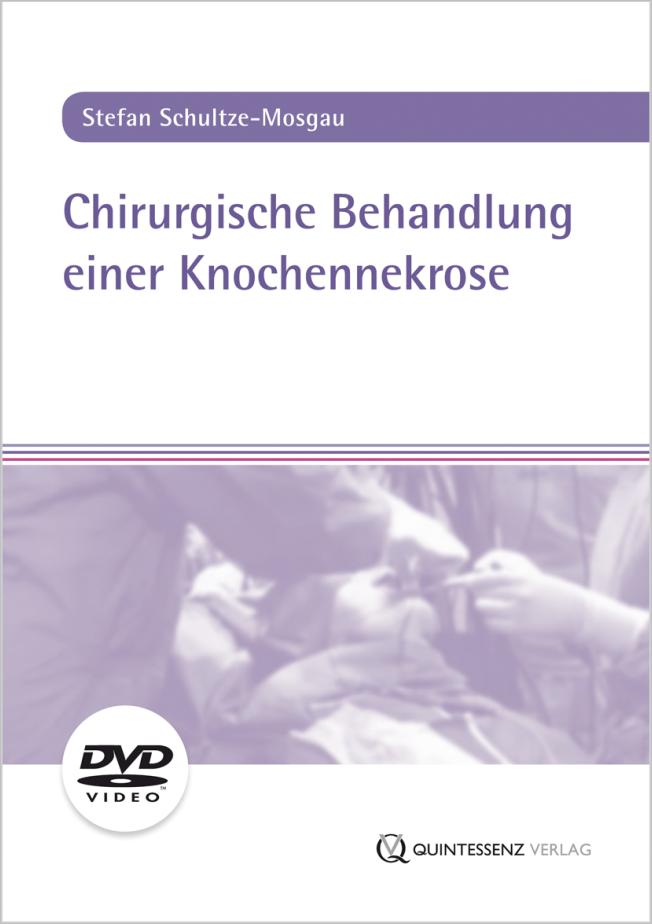 Schultze-Mosgau: Chirurgische Behandlung einer Knochennekrose