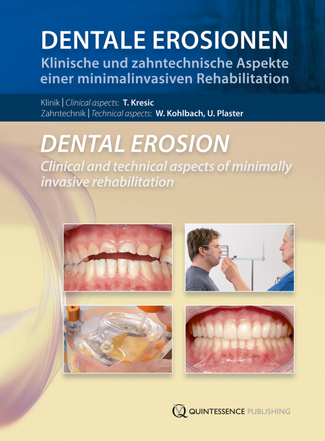 Kresic: Dentale Erosionen / Dental Erosion