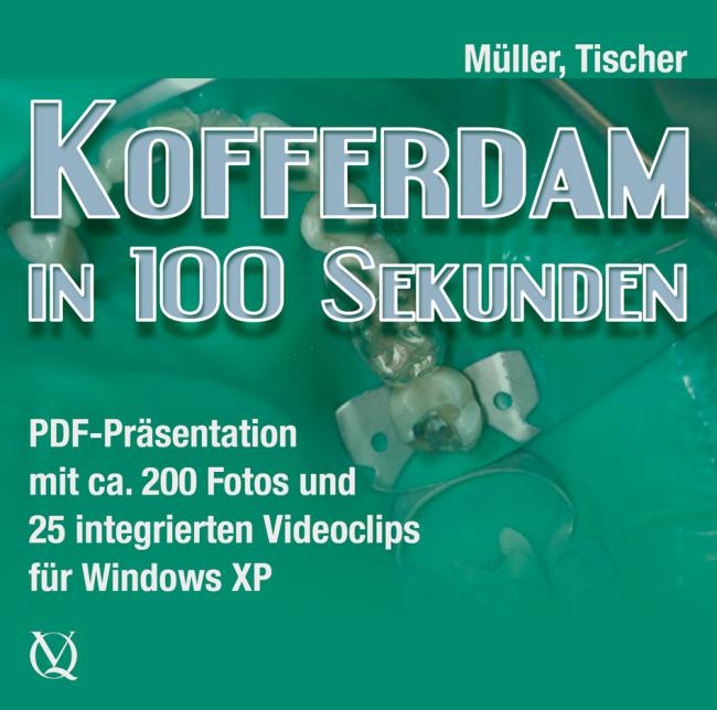 Müller: Kofferdam in 100 Sekunden | Rubber Dam in Only 100 Seconds