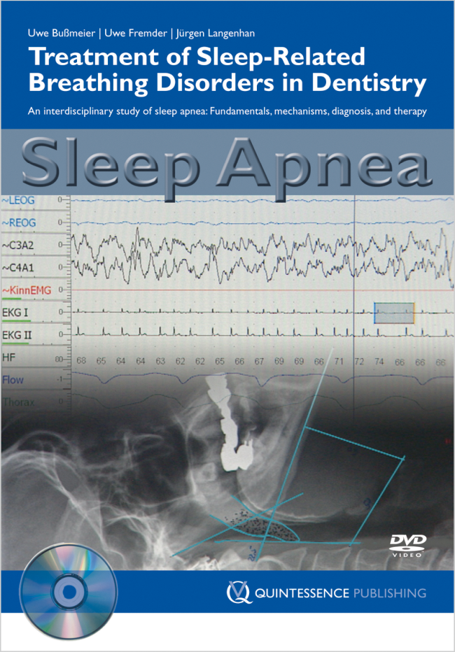 Bußmeier: Sleep Apnea