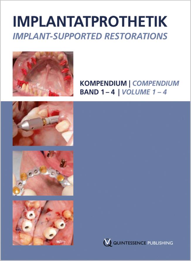 Kirsch: Implantatprothetik / Implant-supported restorations