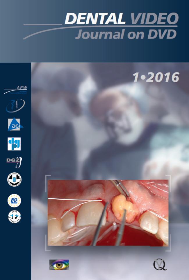 (DGZMK): Dental Video Journal 1/2016