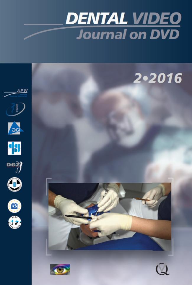 (DGZMK): Dental Video Journal 2/2016