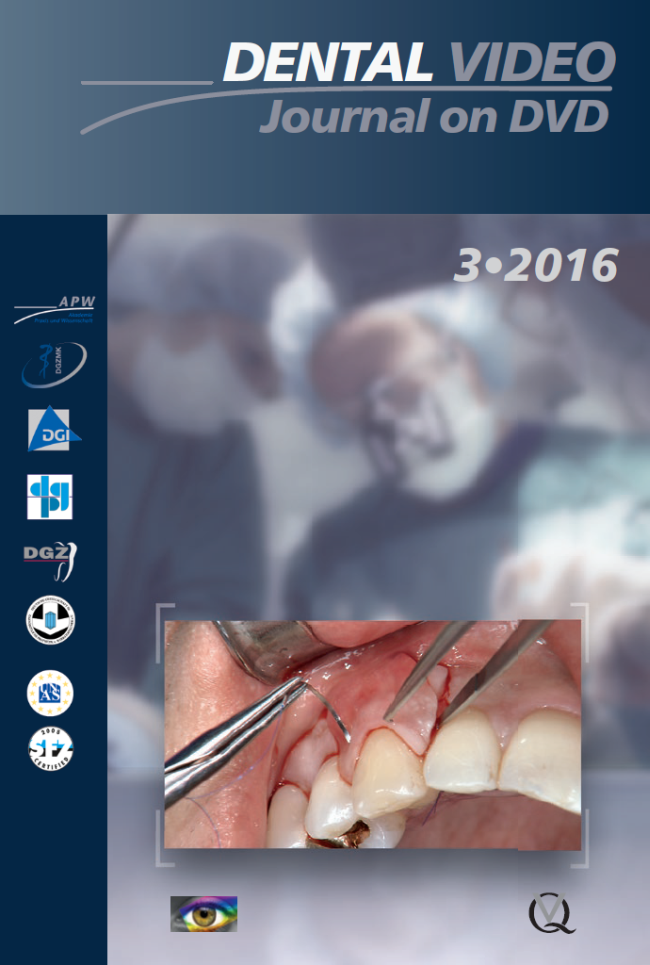 (DGZMK): Dental Video Journal 3/2016