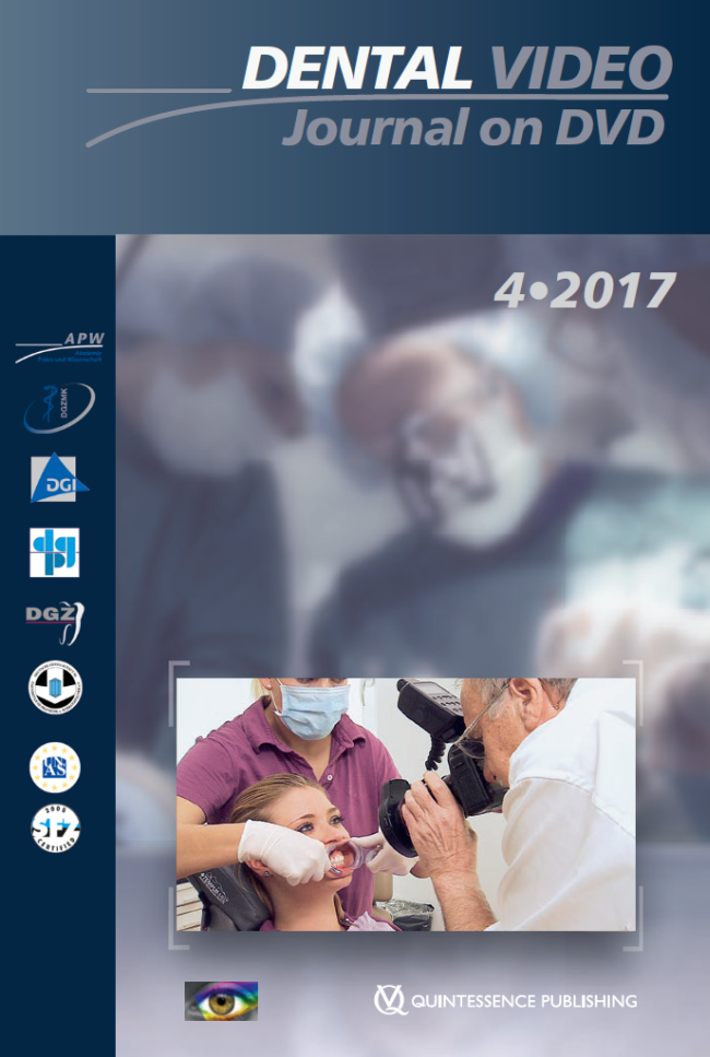 (DGZMK): Dental Video Journal 4/2017
