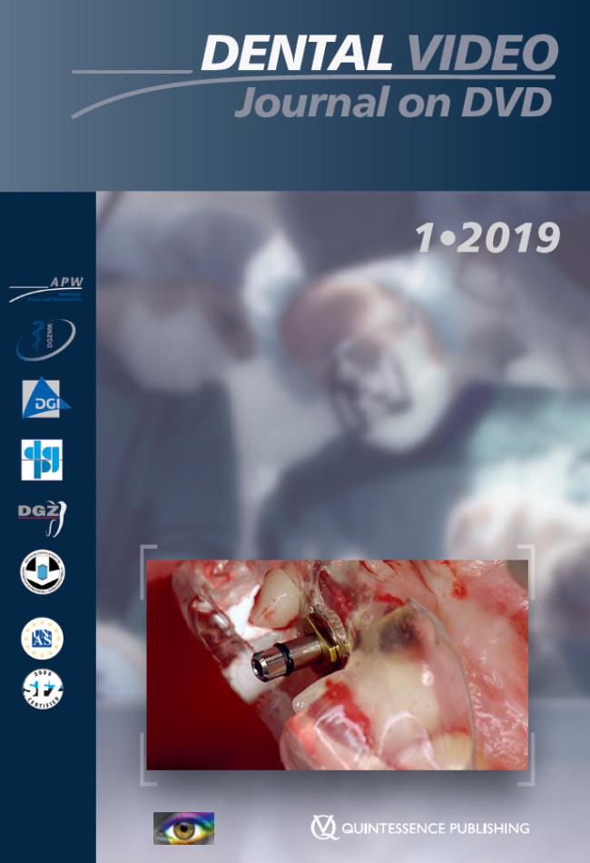 (DGZMK): Dental Video Journal 1/2019