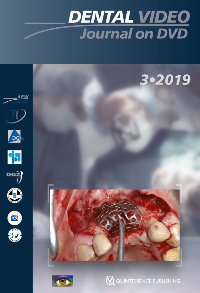 (DGZMK): Dental Video Journal 3/2019