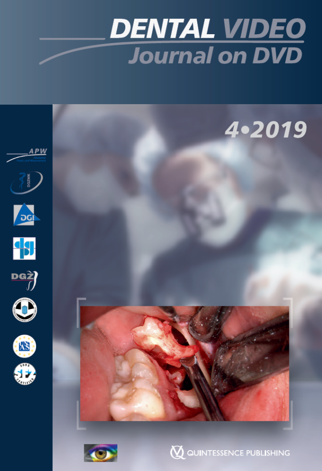 (DGZMK): Dental Video Journal 4/2019
